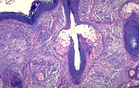 acneoleosessenciais01