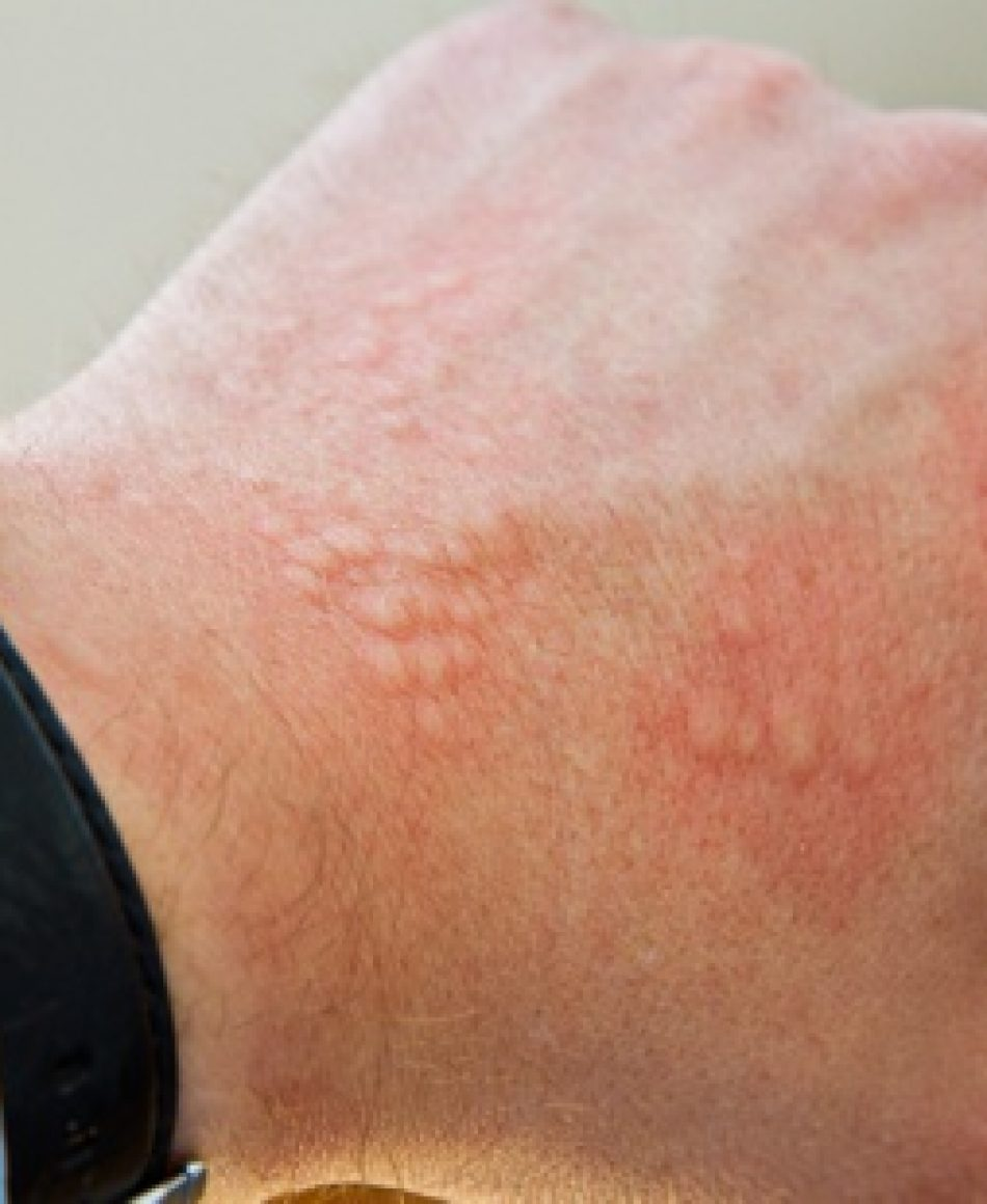 alergiaoes02