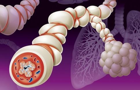 Bronquíolos inflamados pela asma.