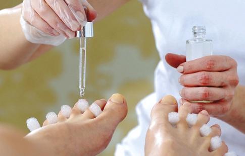 Onicomicose e Aromaterapia